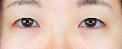 グランドループ法(二重埋没法)術後1週間 女性 20代の症例写真[ビフォー]