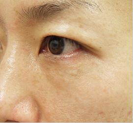 オザキクリニックLUXE新宿のアンチエイジング・美容点滴の症例写真[アフター]