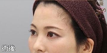 銀座みゆき通り美容外科 大阪院の顔の整形(輪郭・顎の整形)の症例写真[アフター]