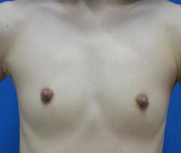 の豊胸・胸の整形の症例写真[ビフォー]