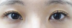 上まぶたのくぼみ治療(ヒアルロン酸注入)の症例写真[アフター]