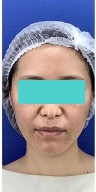La Clinique Ginza(ラ クリニック銀座)の顔の整形(輪郭・顎の整形)の症例写真[ビフォー]