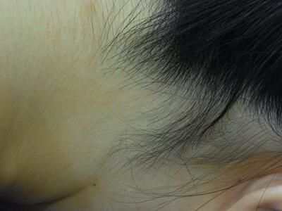 うなじの医療レーザー脱毛[ビフォー]
