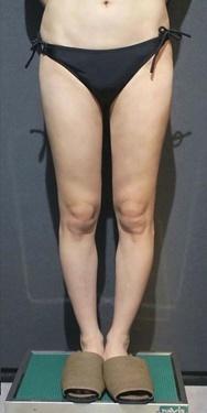 SELECT CLINIC(セレクトクリニック)の脂肪吸引の症例写真[アフター]