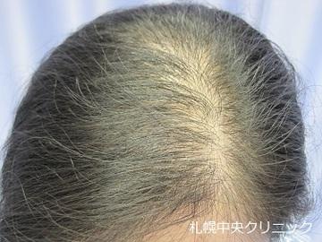 札幌中央クリニックの薄毛治療の症例写真[ビフォー]