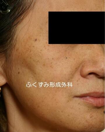ふくずみ皮フ科形成外科のシミ治療(シミ取り)・肝斑・毛穴治療の症例写真[ビフォー]