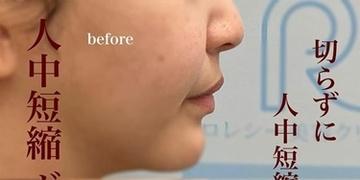 ロレシー美容クリニック 心斎橋駅前院の鼻の整形の症例写真[ビフォー]