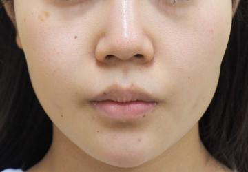 タウン形成外科クリニックの輪郭・顎の整形の症例写真[アフター]