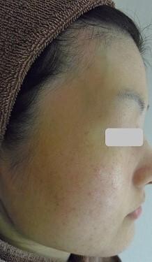 美白脱毛のモニターの症例写真[ビフォー]