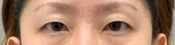 神戸ヴィオラクリニックの目・二重整形の症例写真[ビフォー]