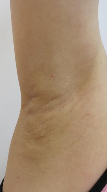 はもり皮フ科のわきが手術・多汗症治療の症例写真[アフター]