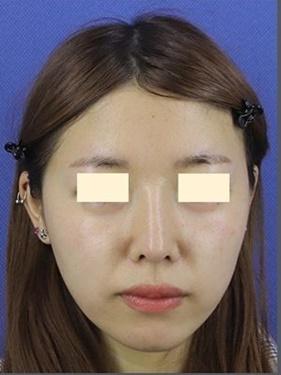 鼻中隔延長・鼻柱下降 (肋軟骨)の症例写真[アフター]