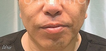 81clinicの医療レーザー脱毛の症例写真[アフター]