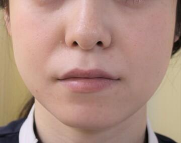 千葉中央美容形成クリニックのシワ・たるみ(照射系リフトアップ治療)の症例写真[ビフォー]