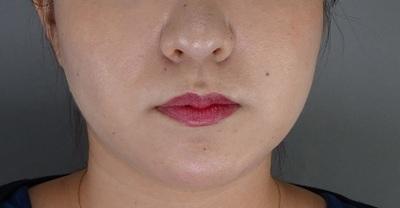 TCB式小顔美肌再生 の症例写真[ビフォー]