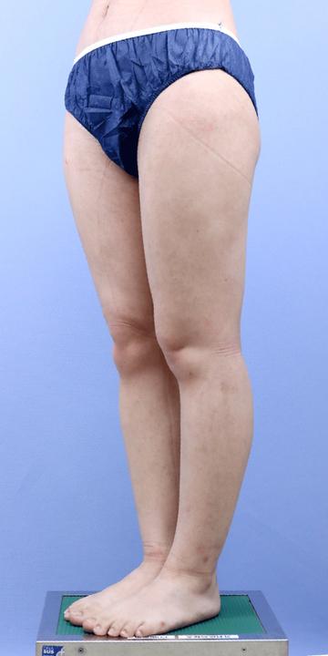 湘南美容クリニック 新宿本院の脂肪吸引の症例写真[アフター]