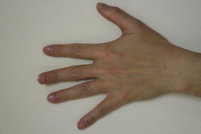 手背のエランセ注入の症例写真[ビフォー]
