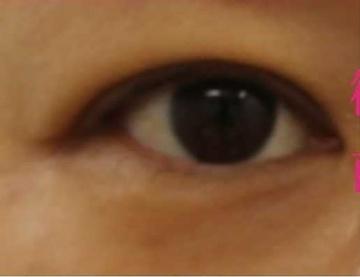 広島プルミエクリニックの目・二重整形の症例写真[ビフォー]