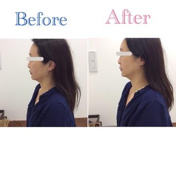 リアラクリニックのシワ・たるみ(照射系リフトアップ治療)の症例写真