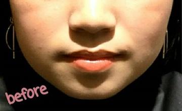 CHRISTINA clinic GINZA (クリスティーナクリニック銀座)の顔の整形(輪郭・顎の整形)の症例写真[ビフォー]