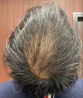 筋肉・美容クリニックの薄毛治療の症例写真[ビフォー]