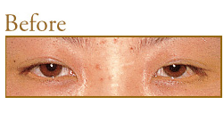 共立美容外科・歯科の目・二重の整形の症例写真[ビフォー]