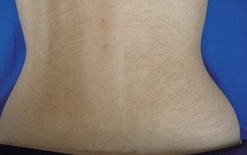 梅田フェミークリニックの医療レーザー脱毛の症例写真[ビフォー]