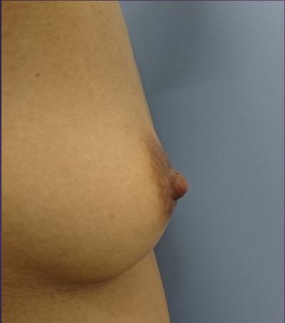 3Dプレミアム注入法によるコンデンスリッチ脂肪豊胸の症例写真[ビフォー]