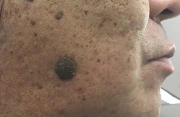 皮フ科 かわさきかおりクリニックのホクロ除去・あざ治療・イボ治療の症例写真[ビフォー]