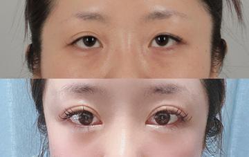 銀座id美容クリニックの目・二重整形の症例写真