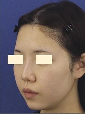 プロテーゼ入れ替え・鼻先の形成(肋軟骨)の症例写真[ビフォー]