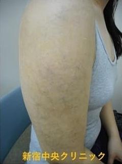 新宿中央クリニックのタトゥー除去(刺青・入れ墨を消す治療)の症例写真[アフター]
