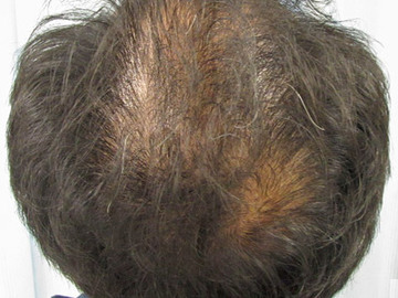 あやべクリニックの薄毛治療・AGA・発毛の症例写真[ビフォー]