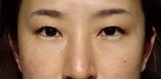 SELECT CLINIC(セレクトクリニック)の症例写真[ビフォー]