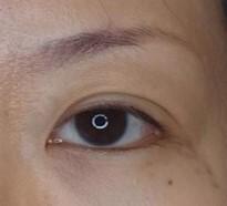 麗ビューティー皮フ科クリニックの目・二重の整形の症例写真[アフター]