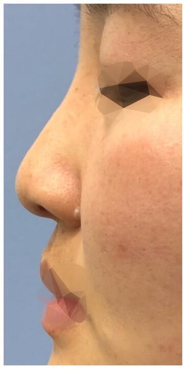 湘南美容クリニック 新潟院の鼻の整形の症例写真[ビフォー]