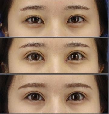 銀座長瀬クリニックの目・二重整形の症例写真
