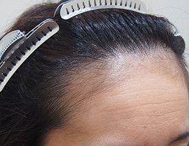 アスク井上クリニック (自毛植毛・薄毛治療 専門)の植毛・自毛植毛の症例写真[アフター]