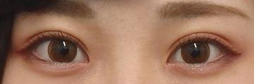 湘南美容クリニック広島院の目・二重の整形の症例写真[アフター]