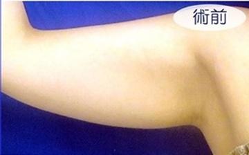 広島プルミエクリニックの脂肪吸引の症例写真[ビフォー]