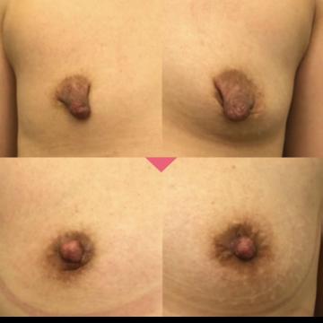 の乳首・乳輪の整形の症例写真