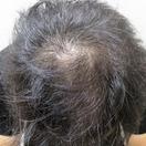 AGA(薄毛)治療 3ヶ月 A_0046[アフター]