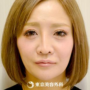 東京美容外科の顔のしわ・たるみの整形(リフトアップ手術)の症例写真[ビフォー]