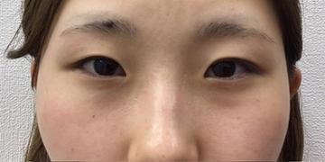 東京ゼロクリニック銀座の目・二重の整形の症例写真[ビフォー]