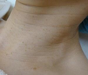 スキンコスメクリニックグループのホクロ除去・あざ治療・イボ治療の症例写真[ビフォー]