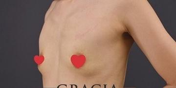 GRACIA clinic(グラシアクリニック)の豊胸・胸の整形の症例写真[ビフォー]