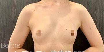 ルラ美容クリニック高田馬場院の豊胸手術(胸の整形)の症例写真[ビフォー]
