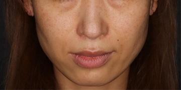 SELECT CLINIC (セレクトクリニック)のシミ治療(シミ取り)・肝斑・毛穴治療の症例写真[ビフォー]