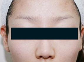 のその他の美容皮膚科治療の症例写真[アフター]
