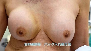 心斎橋コムロ美容外科クリニックの豊胸手術(胸の整形)の症例写真[ビフォー]